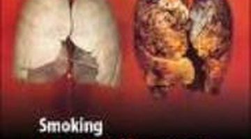 A healthy lung and a burnt smoker's lung