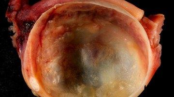 Ovarian Cyst