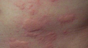 Hives credit: Enochlau wikimedia commons