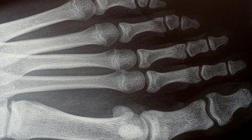 ¿Cuáles son las lesiones comunes del sistema esquelético?