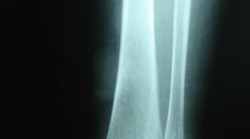 Los tornillos y las placas en un tobillo roto
