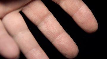 La descamación de la piel de los dedos puede tener muchas causas.