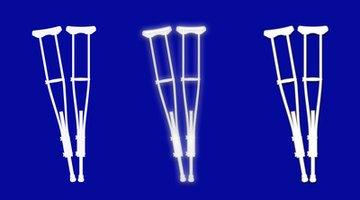 ¿Cuánto tiempo se debe usar muletas después de un cirugía de juanete y de dedos en martillo?