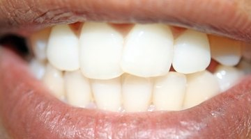How to Whiten Dental Crowns