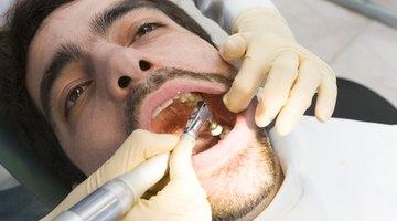 Cómo pegar un diente