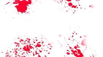 Causas de sangre MPV alta