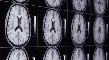 ¿Qué trastornos cerebrales detecta una resonancia magnética?
