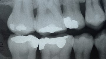 Calcium Intake and Tooth Decay