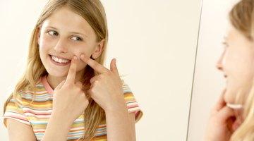 ¿Cuánto tiempo debería utilizarse Bactroban para tratar el acné?