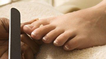 Cómo cuidar una uña del pie que se está cayendo