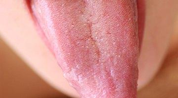 Cómo curar heridas de la lengua