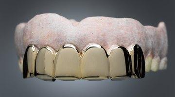 Cómo colocar una corona dental sin el dentista