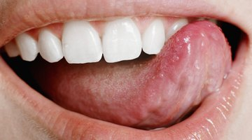 How to Get Rid of Tongue Sores