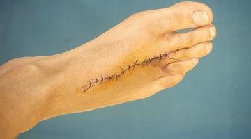 Cómo utilizar la cinta micropore en una cicatriz