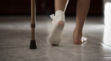 Heel Stress Fracture Symptoms
