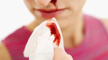 Hemorragias nasales después de hacer ejercicio