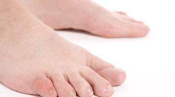 Cómo cuidar de un dedo del pie hinchado