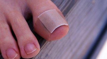 ¿Qué hacer cuando aparece sangre debajo de las uñas?