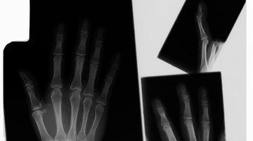 Duración de una quebradura en un dedo de la mano