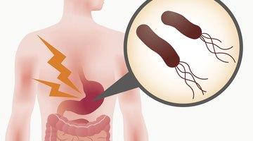 Helicobacter Pylori: síntomas y tratamiento