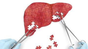 ¿Qué especialistas médicos tratan los problemas del hígado?