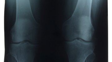 What Are Calcium Deposits in Your Knees?