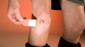 How to Stop Wounds From Itching While They Are Healing