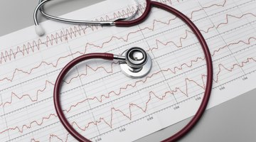 La frecuencia cardíaca después de las comidas