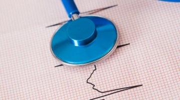 Ausencias y pausas en el ritmo cardíaco