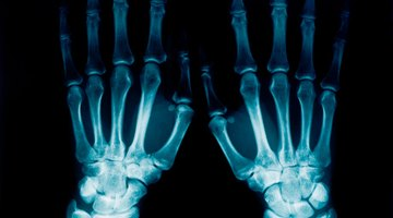 Tipos de equipos de rayos X