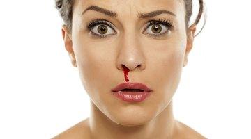 ¿Por qué la nariz sangra de repente?