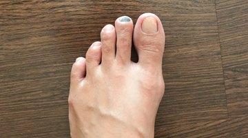 Remedio para el hongo negro en una uña engrosada del pie