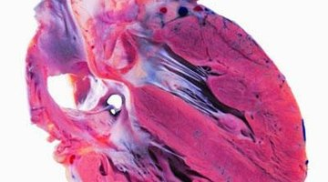 Can You Reverse Calcium Deposits in Coronary Arteries?