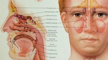 What Is Diffuse Sinus Disease?