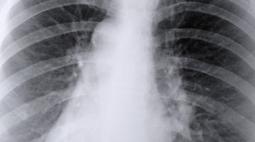 Air Space Lung Disease Information