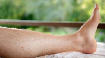 How to Treat Gout at Home