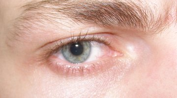 Can Vitamin D3 Help Dry Eyes?