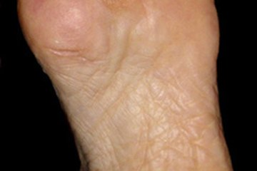 Podiatrist treat foot disease and injury.