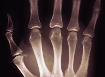 Students will be surprised to find that the lengths of finger bones approximate the Fibonacci sequence.