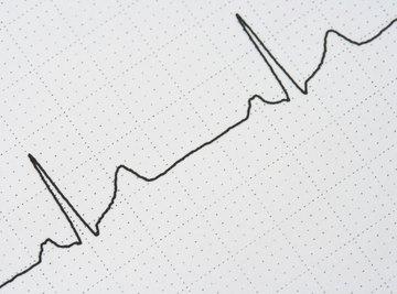 The waveform from an EKG machine.