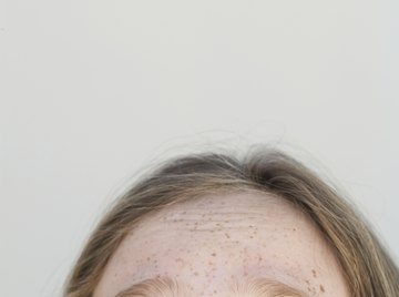 Freckles are an inherited dominant gene trait.