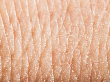 A close-up of human skin.