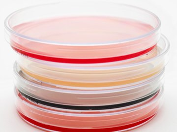 Scientists use agar plates to show the formation of lactic acid producing bacteria.