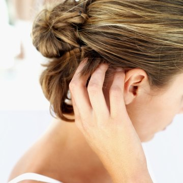 Resist the urge to scratch your scalp, which can make dandruff worse.