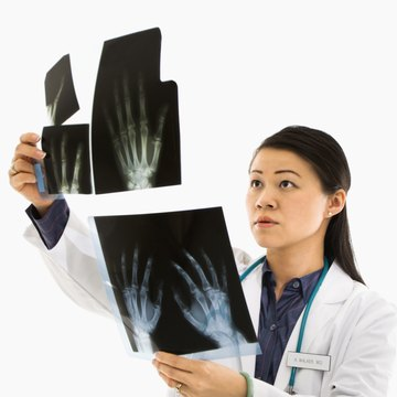 Doctor looking at X-rays