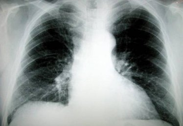 About Lung Cancer Symptoms: Coughing