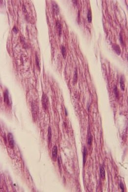 Skeletal muscle cells can be several inches long.