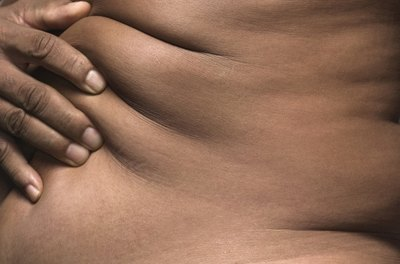 Losing more than 100 pounds can lead to irreversible stretching of the skin.