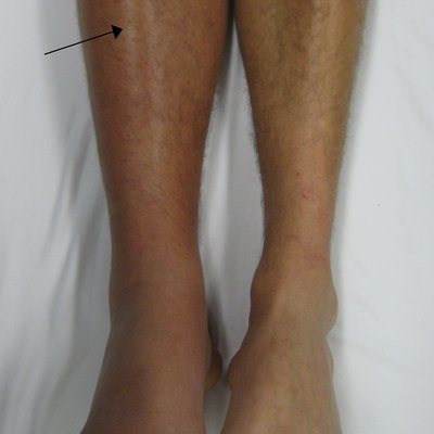 A deep vein thrombosis of the right leg. Note the swelling and redness.