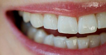 C mo eliminar el sarro dental en casa muy fitness - Eliminar sarro en casa ...